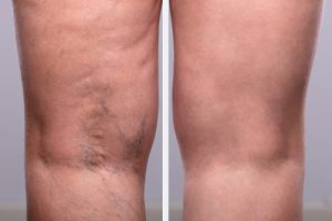 person's legs before and after varicose and spider vein treatment